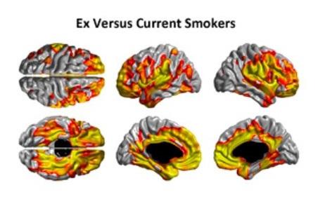 BrainScansSmoking2