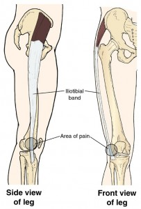 Iliotibial Band Syndrome Chiropractic