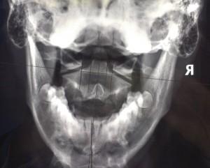 APOM dysautonomia upper cervical