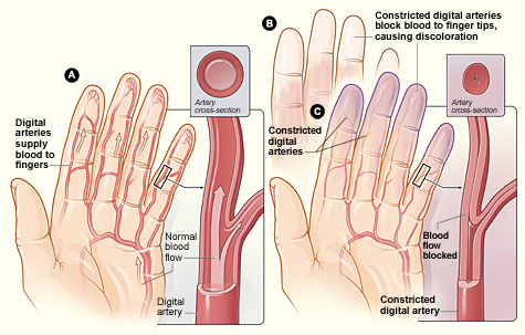 Raynaud's Syndrome Chiropractor