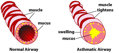 asthma-airways-mucus-chiropractic