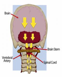atlas-axis-brainstem