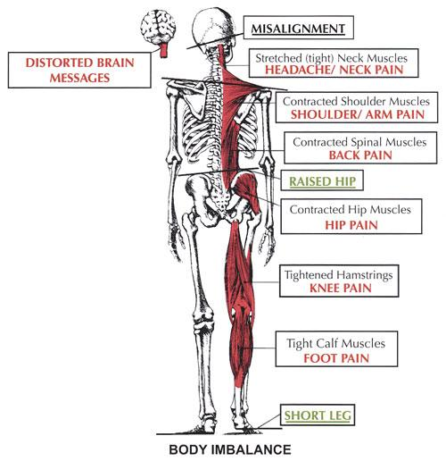 body-imbalance-atlas-misalignment