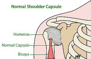 frozen shoulder capsule chiropractic