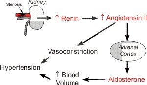 hypertension angiotensin II