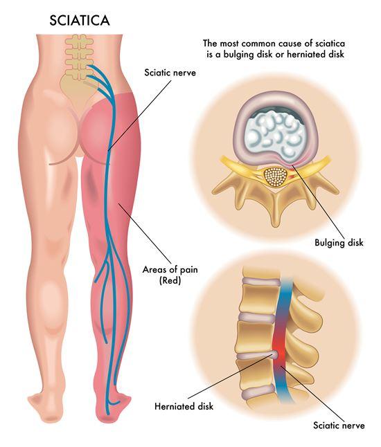 sciatica sciatic pain chiropractor