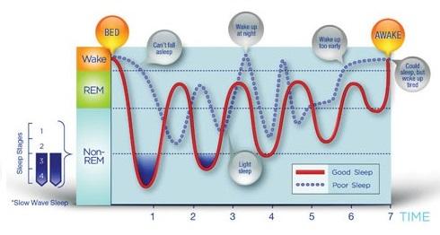 sleep-cycle-bedwetting-chiropractic