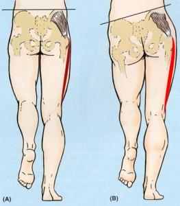 weak gluteus medius chiropractic